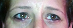 Swelling from Permanent Make-up