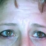Permanent eyeliner swelling